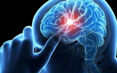 Egy új tanulmány a Covid-19-et az egészséges fiatal betegek stroke-jához köti